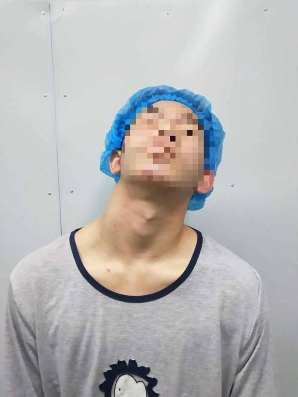 """17岁""""高龄""""先天性斜颈患者终于迎来新""""面貌"""":歪脖子不再歪"""