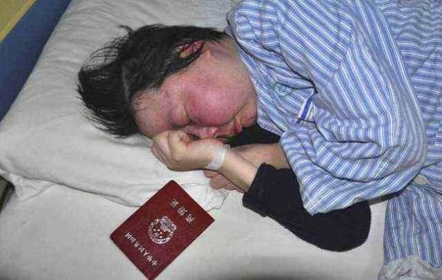 九成年轻女性、亚洲人都会患的红斑狼疮,出现3种症状,赶紧检查