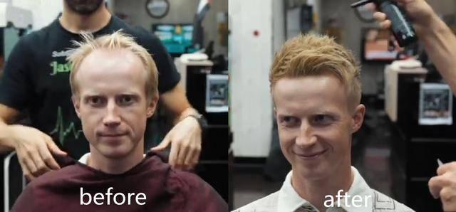 原创 脱发的救星来了!迪拜理发师给秃顶做造型,不用假发也变得很茂密