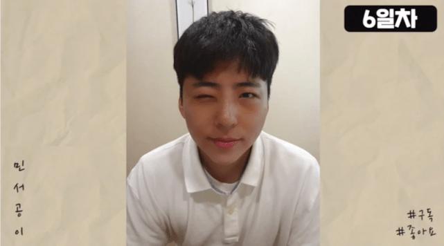 原创 韩国男网红整容成翻版朴宝剑,今公开整容过程,手术后脸肿成猪头