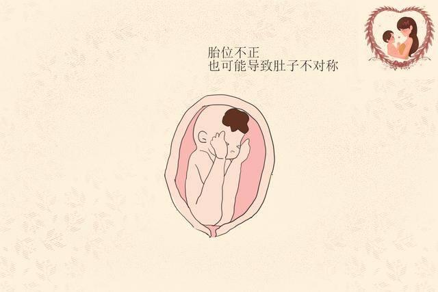 为何孕肚两边不对称,看起来一边大一边小?准妈妈要知道原因