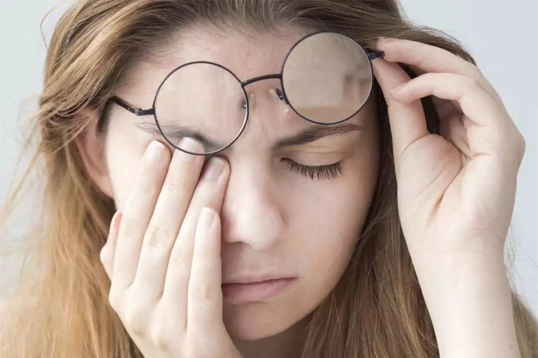 狐大医 | 90后女孩睫毛上发现螨虫!医生提醒:有传染性,三种情况需警惕