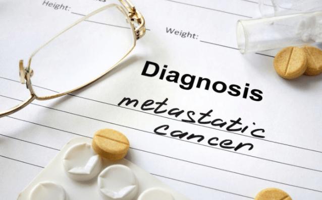 癌症患者关节疼痛就是发生骨转移了吗?听听肿瘤专家怎么说