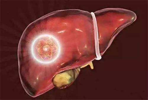 若你身上这3处经常发出臭味,不能再大意了,很可能是肝脏受损了