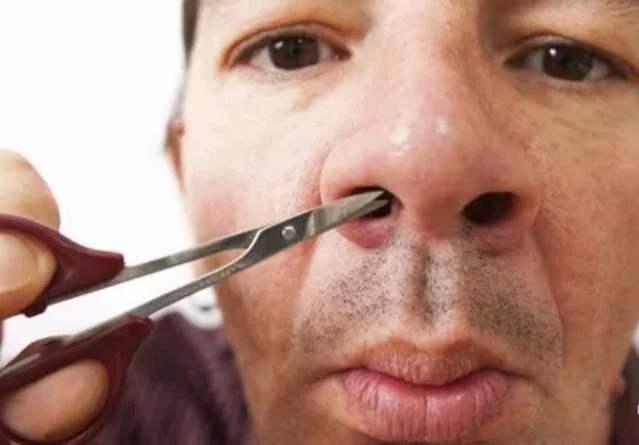 """为什么鼻毛会""""窜""""出来?鼻毛过于旺盛,你要注意这3种问题了"""