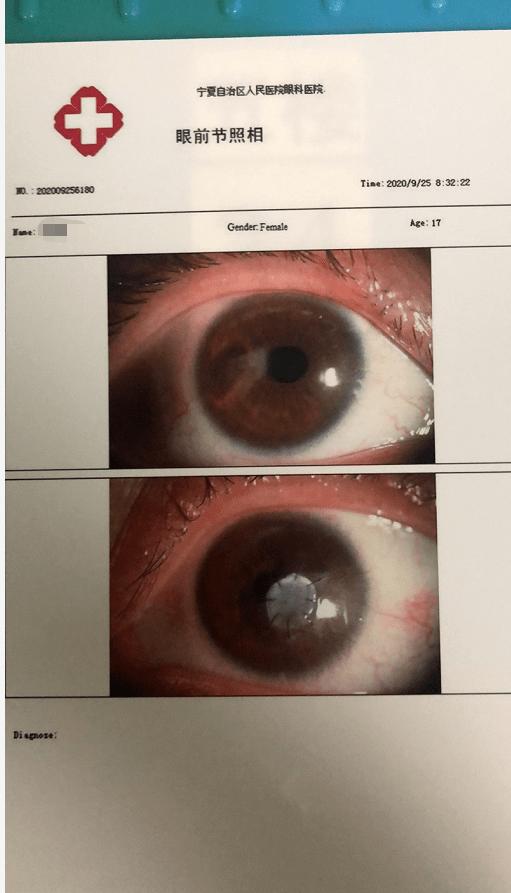 谨防宁夏17岁女生眼睛螨虫 角膜穿孔 近失明!