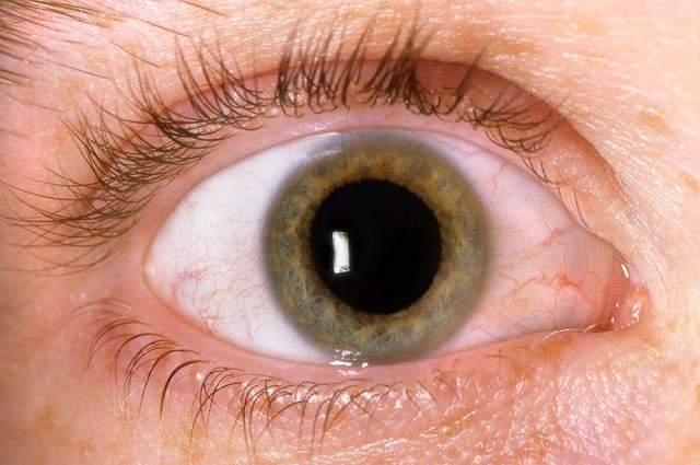 体内血糖高,眼睛先遭殃?出现这3个现象,暗示糖尿病眼已出现