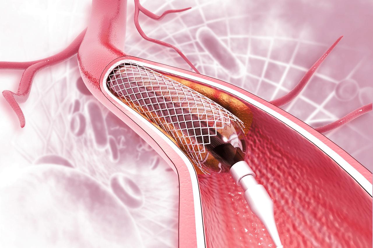 原创 专访国家医保局:心脏支架集采节省了117亿,下一步将有序推进