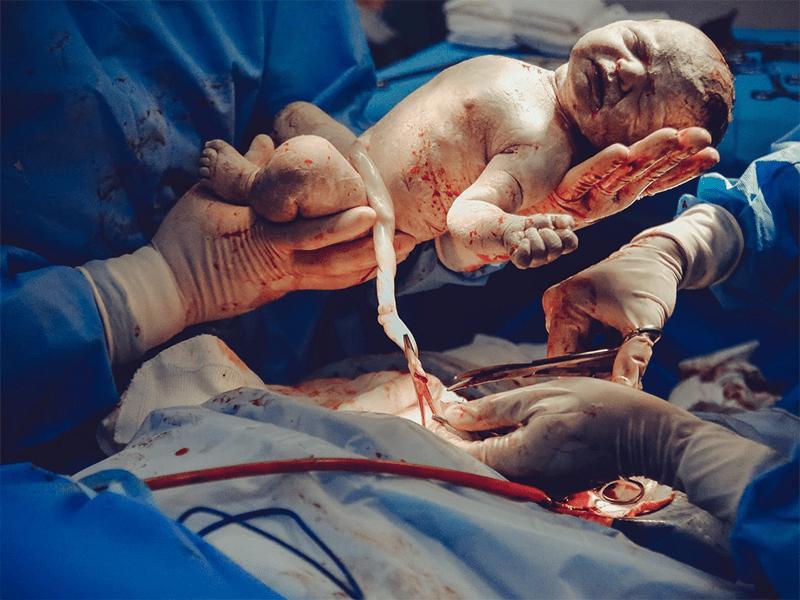 产妇顺产到一半改剖腹产,可胃里满满,如何进行剖腹产的麻醉呢?