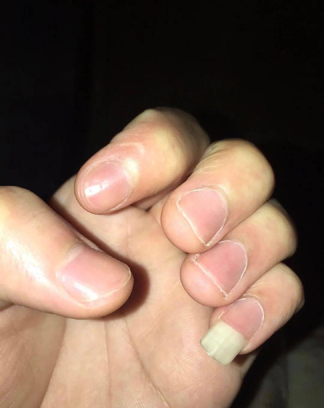 为什么中国直男爱留尾指指甲?