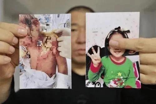 抚顺6岁女童体表烫伤重伤二级!律师称生母及男友涉故意伤害