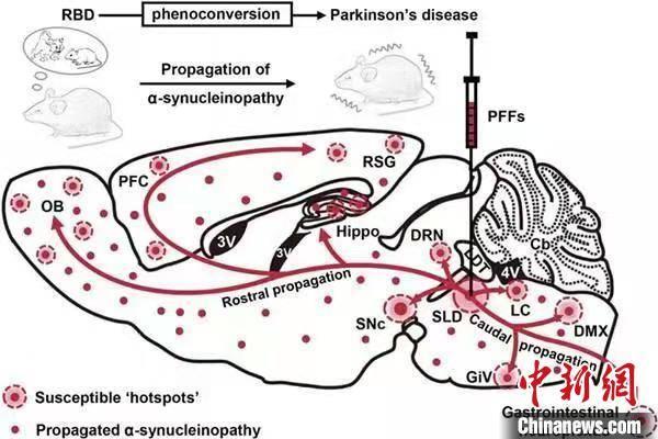 中加学者携手构建新型动物模型 可助制定帕金森病防治策略