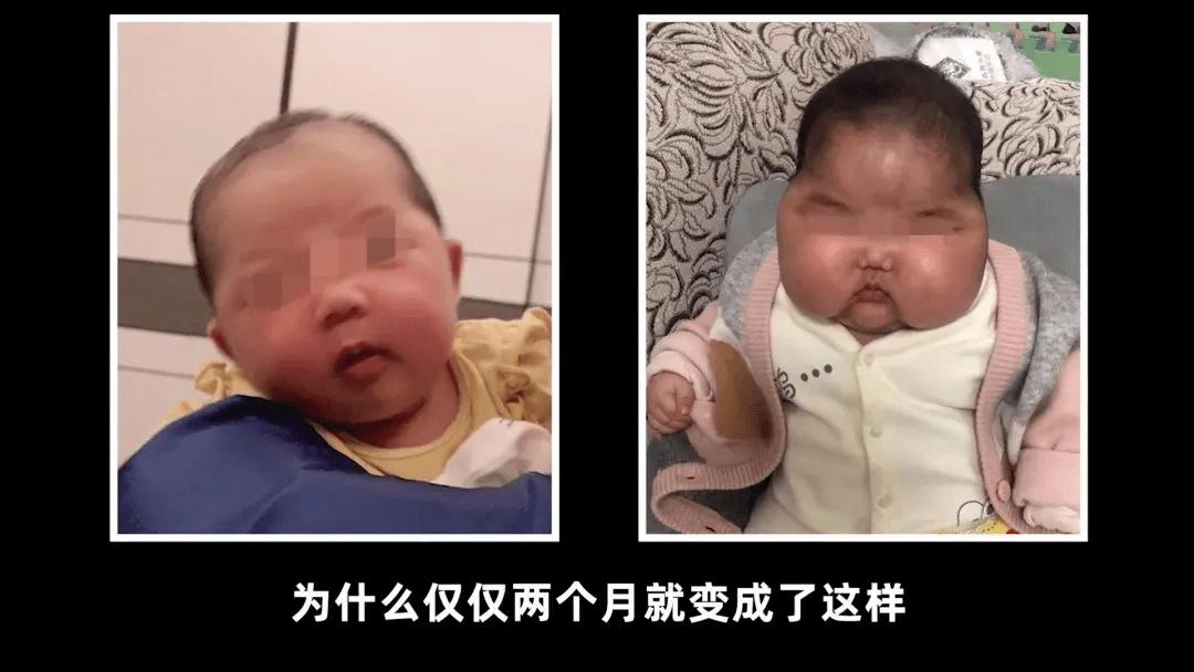 5月女婴疑用抑菌霜后多毛长胖、发育迟缓,广州销售情况如何?记者暗访→