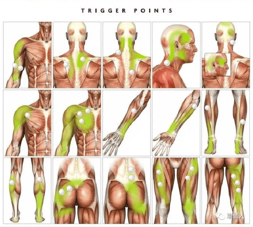 网球自我按摩:肌筋膜激痛点与还原!