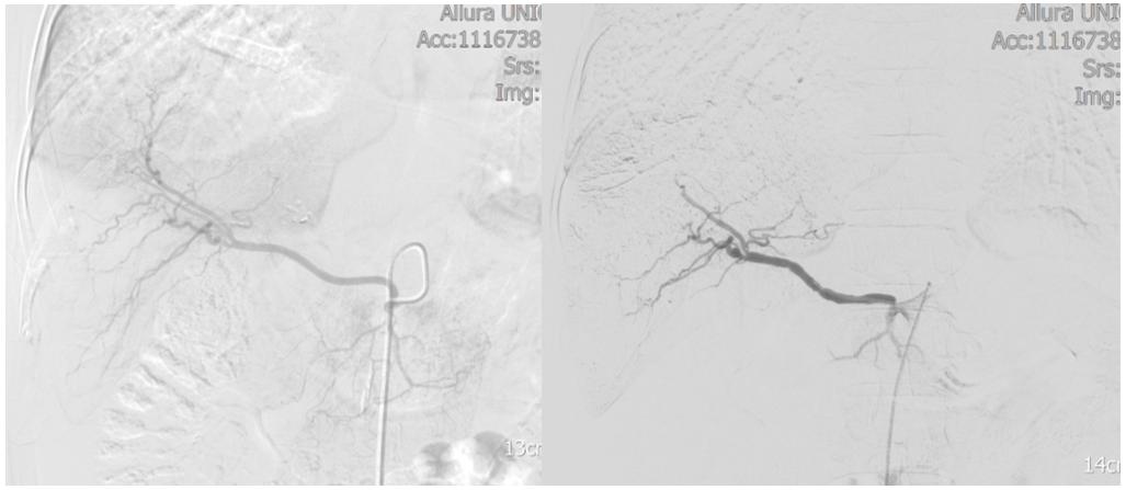 不抛弃、不放弃,介入放射有利器!两例高难度肝癌介入手术在北部宽仁
