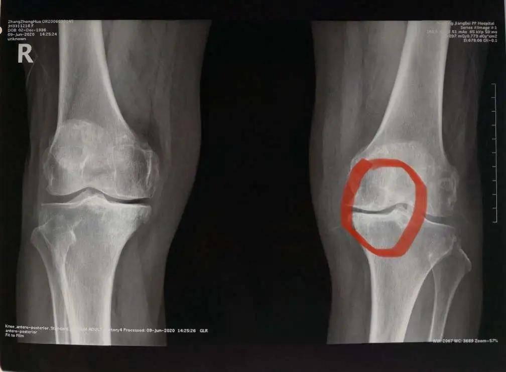 膝关节置换,让 8 旬老人重获行走自由