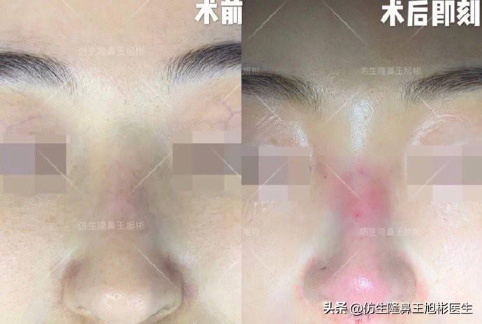 鼻头变小多少钱(缩小鼻子手术安全吗)插图(5)