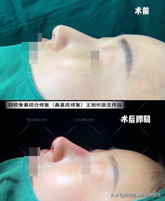 鼻头变小多少钱(缩小鼻子手术安全吗)插图(6)