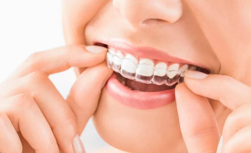 牙套多少钱一副(矫正牙齿贵吗)插图(3)