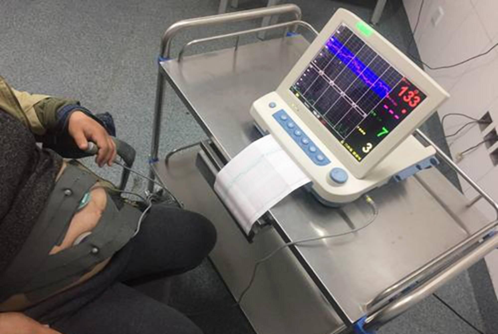 孕晚期疲惫感增重 胎心监护检测能及时掌握胎儿情况