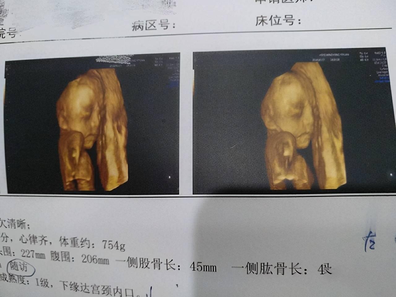 宝宝四维彩超特别丑?不是因为医生技术差 是这4个原因在作怪-家庭网