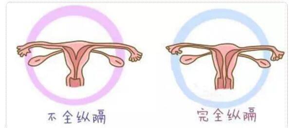 帶你了解不孕不育的元兇之一,子宮縱隔!