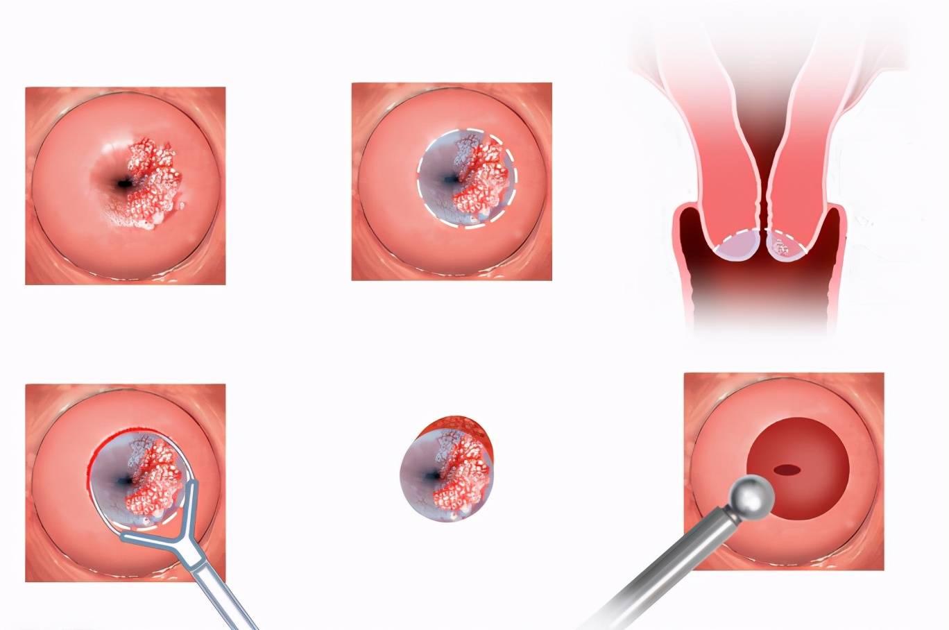 男人感染hpv初期图片 男人感染hpv会自愈吗