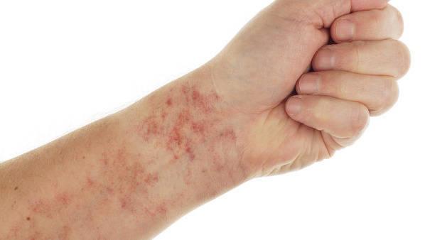 皮肤过敏瘙痒怎么办?