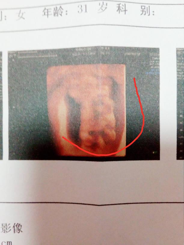 9周B超有胎心胎芽,13周NT居然查出连体婴...