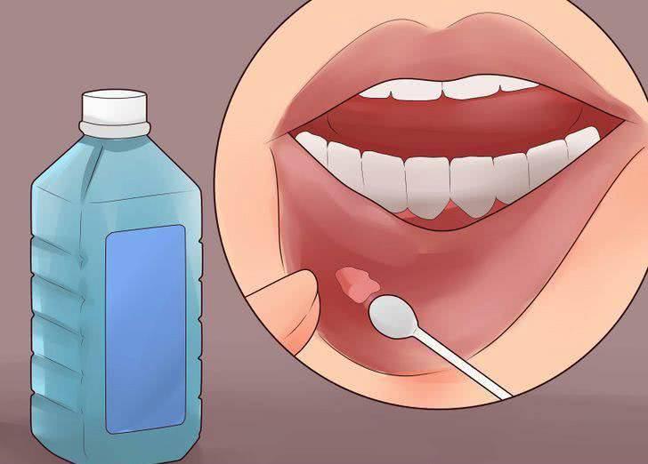 狐大医|口腔溃疡超过2周不愈,要警惕可能是口腔癌2mu