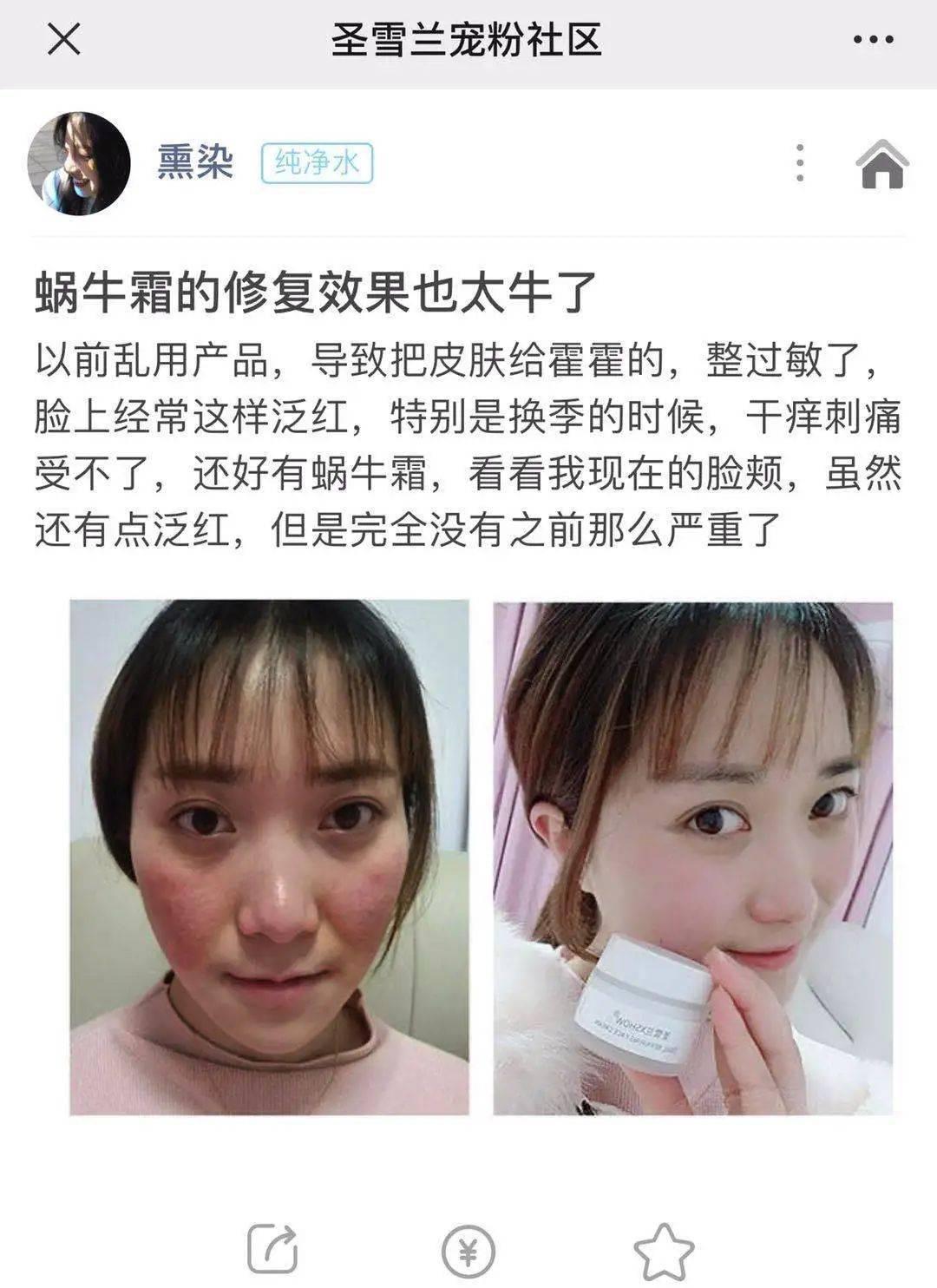 """圈粉半个娱乐圈!获奖无数的修复霜,99元锁住18岁""""初恋脸"""""""