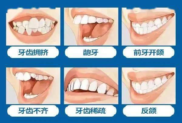 @云南人:今起,看牙可领高额补贴,不限户籍!速看!