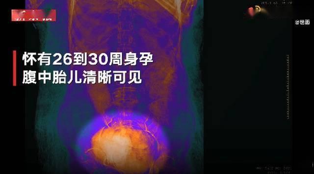腹中胎儿扫描清晰可见-家庭网
