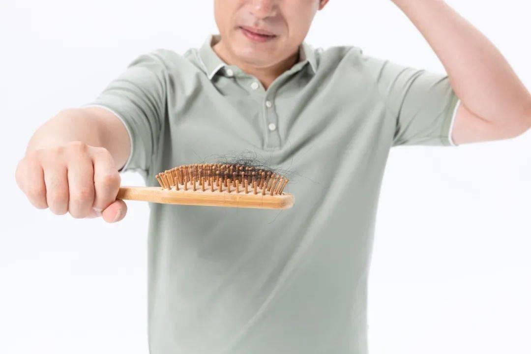 """挺""""秃""""然的!2.5亿中 国人受脱发困扰,""""植发"""